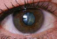 all about cataract